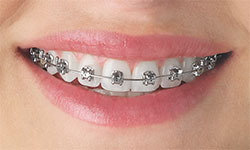 Types Of Braces Meinhardt Orthodontics Sheboygan Plymouth Wi